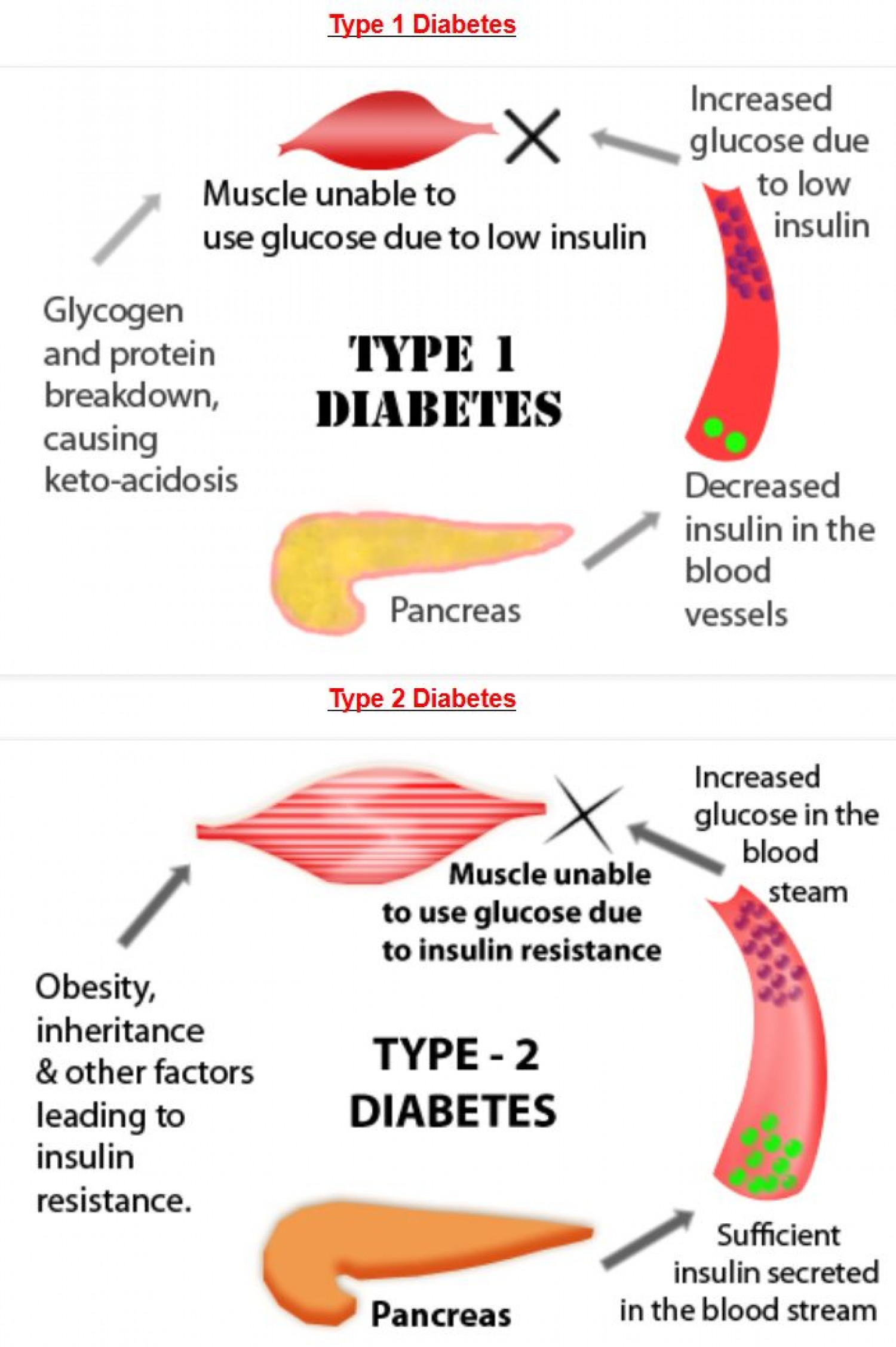 diabetes and health Diabetes factsheet from who providing key facts and information on types of diabetes, symptoms, common consequences, economic impact, diagnosis and treatment, who response updated november 2014.